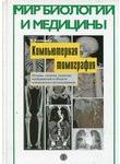 Компьютерная томография. Основы, техника, качество изображений и области клиниче